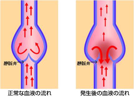 下肢静脈瘤のメカニズム