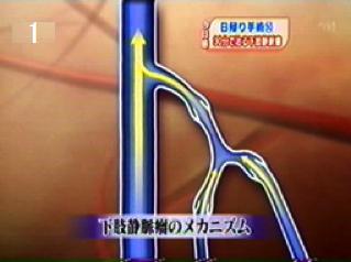 下肢静脈のメカニズム1