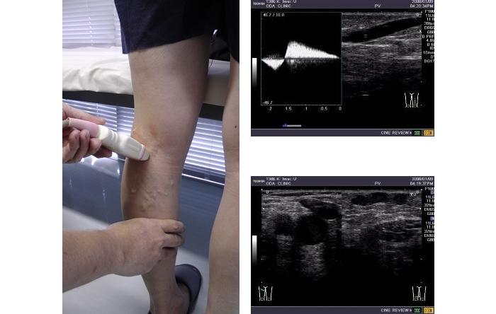 超音波検査ドプラー法での静脈逆流の測定