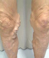 下肢静脈瘤について